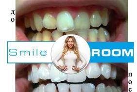 Франшиза отбеливание зубов